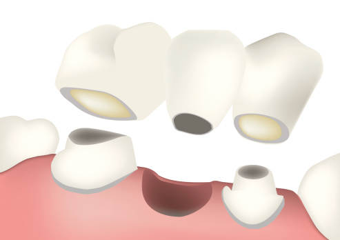 A bridge is two or more crowned teeth connected together