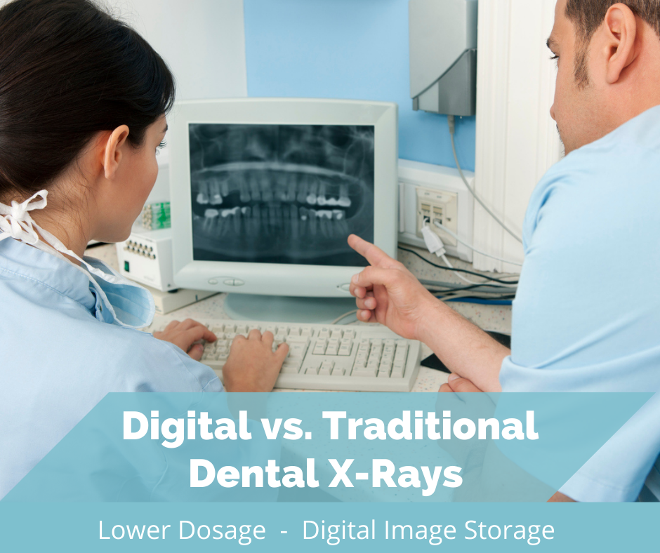 Digital vs. Traditional Dental X-Rays